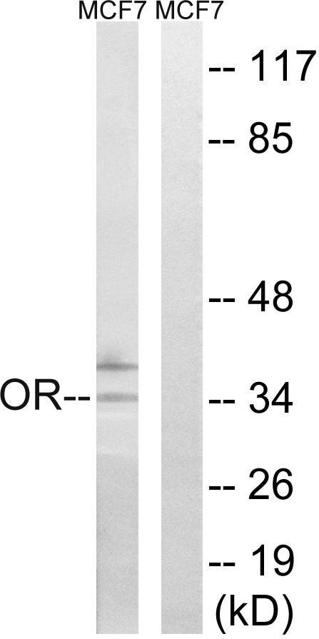 OR51H1P Antibody in Western Blot (WB)