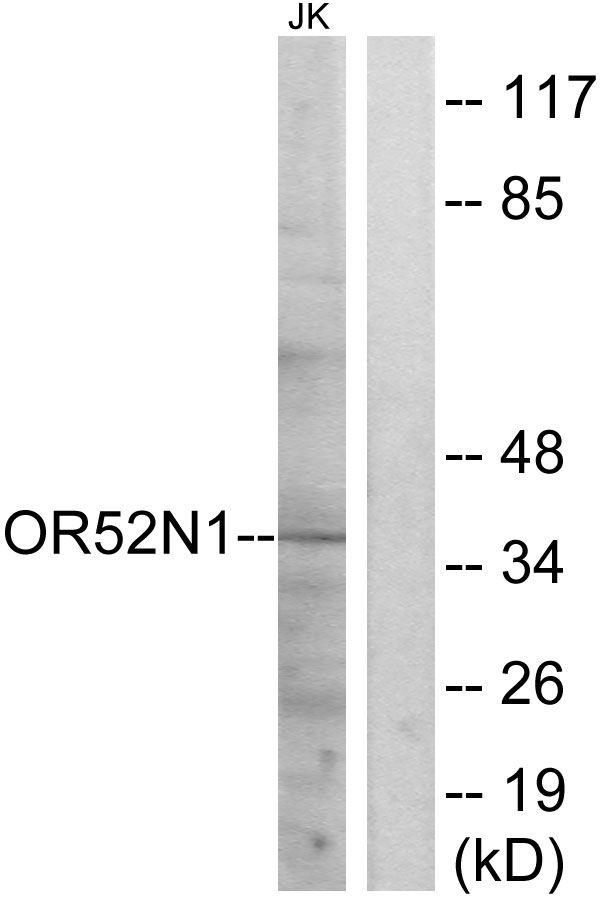 OR52N1 Antibody in Western Blot (WB)