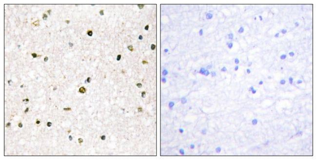 AKAP11 Antibody in Immunohistochemistry (Paraffin) (IHC (P))