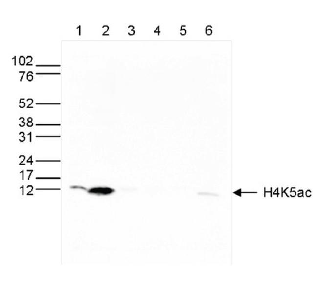 Acetyl-Histone H4 (Lys5) Antibody in Western Blot (WB)