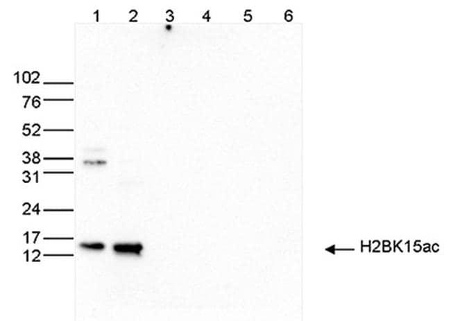 H2BK15ac Antibody in Western Blot (WB)
