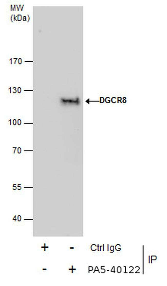 DGCR8 Antibody in Immunoprecipitation (IP)