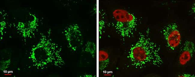 Glutaminase C (GAC) Antibody in Immunofluorescence (IF)