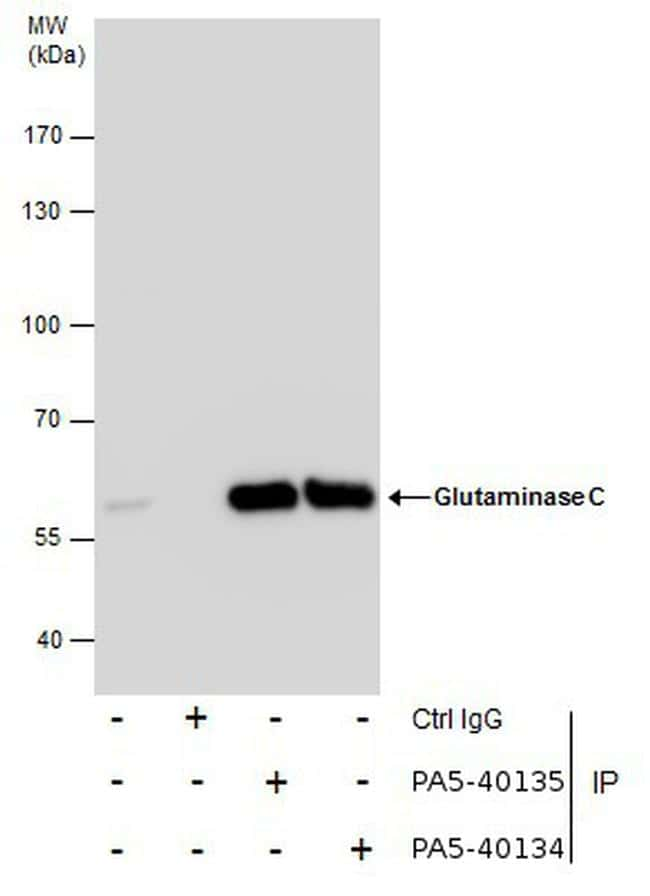 Glutaminase C (GAC) Antibody in Immunoprecipitation (IP)