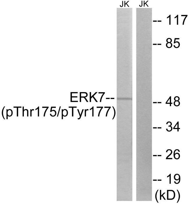 Phospho-MAPK15 (Thr175, Tyr177) Antibody in Western Blot (WB)
