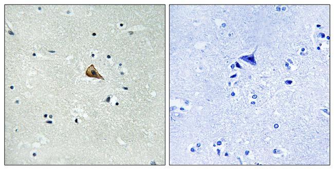 Phospho-TrkA (Tyr701) Antibody in Immunohistochemistry (Paraffin) (IHC (P))