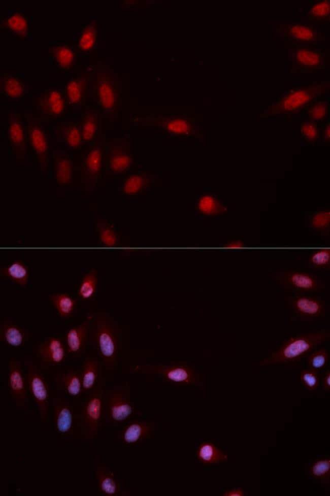 Phospho-CHK1 (Ser317) Antibody in Immunofluorescence (IF)