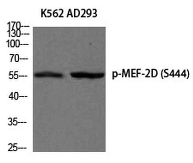 Phospho-MEF2D (Ser444) Antibody in Western Blot (WB)