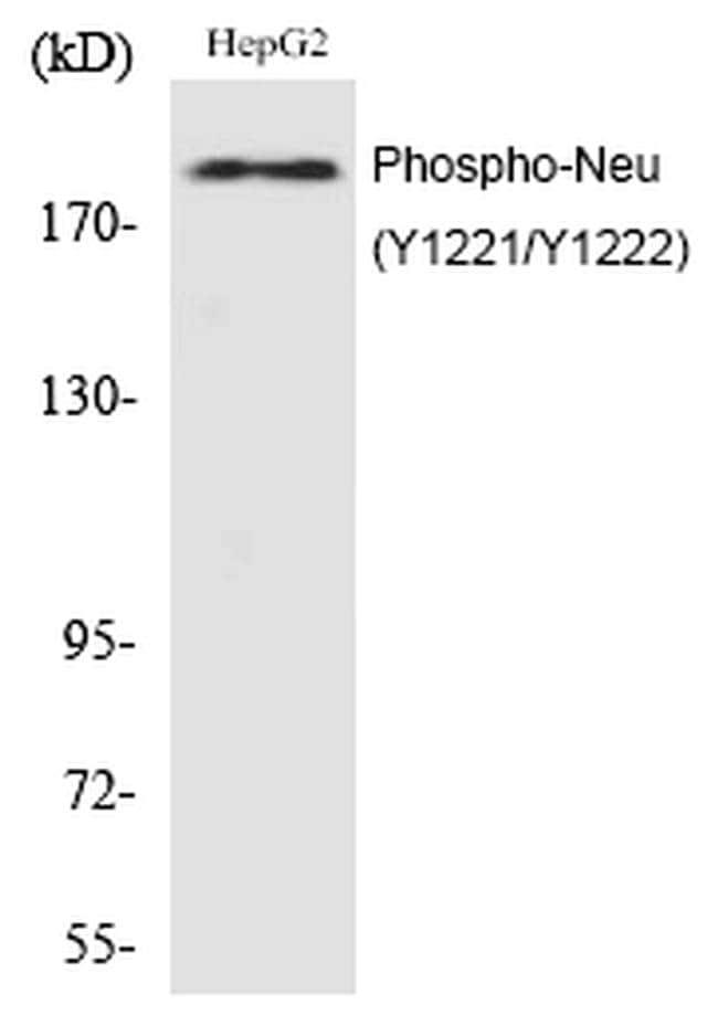 Phospho-ErbB2 (HER-2) (Tyr1221, Tyr1222) Antibody in Western Blot (WB)