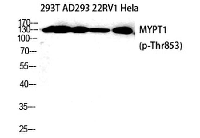 Phospho-MYPT1 (Thr853) Antibody in Western Blot (WB)