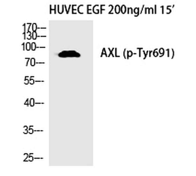 Phospho-Axl (Tyr691) Antibody in Western Blot (WB)