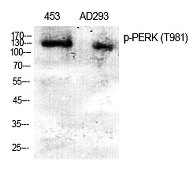 Phospho-PERK (Thr982) Antibody in Western Blot (WB)