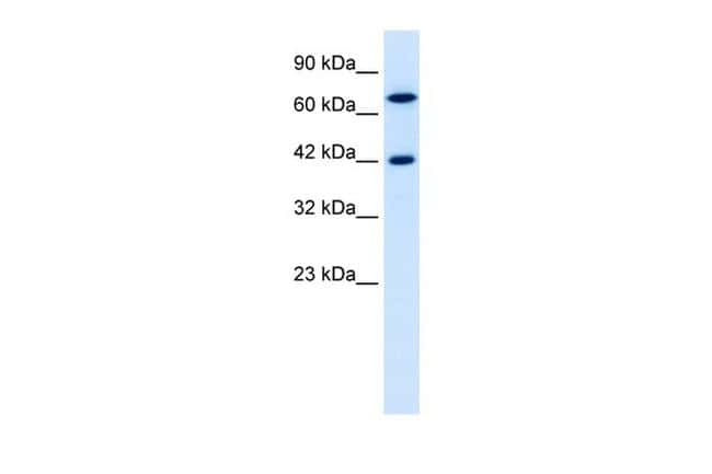 TOX2 Antibody in Western Blot (WB)
