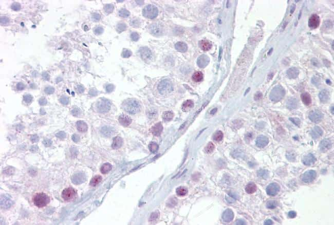 UTF1 Antibody in Immunohistochemistry (IHC)
