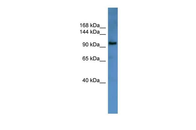 ZEB1 Antibody in Western Blot (WB)