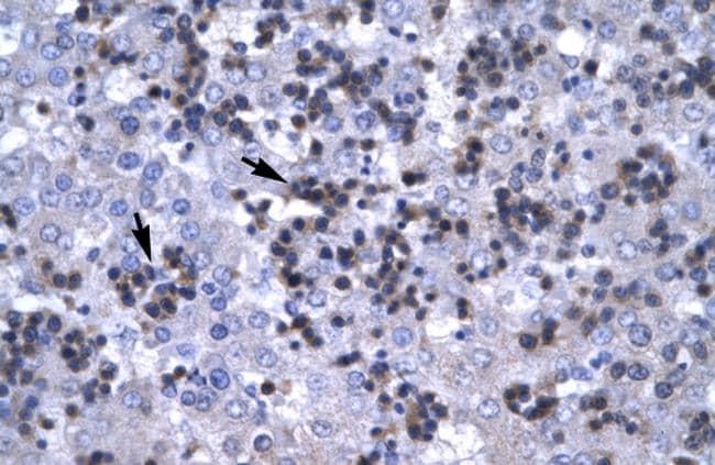 RBPJ Antibody in Immunohistochemistry (IHC)