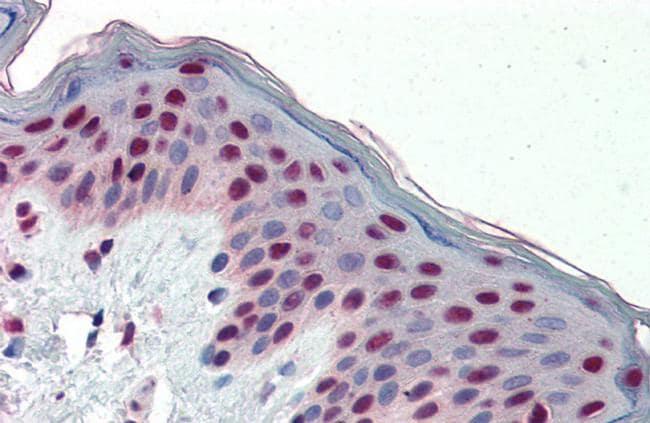 Fra1 Antibody in Immunohistochemistry (Paraffin) (IHC (P))
