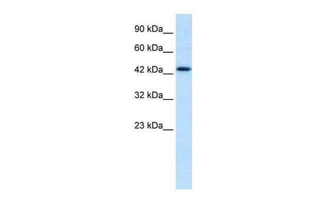 DLX2 Antibody in Western Blot (WB)