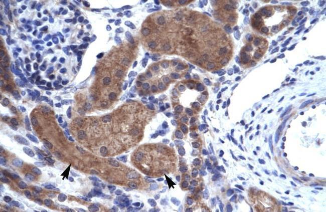 HELIOS Antibody in Immunohistochemistry (IHC)