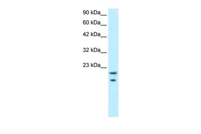 MYCBP Antibody in Western Blot (WB)