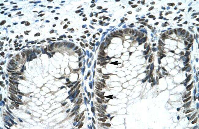 GLI2 Antibody in Immunohistochemistry (Paraffin) (IHC (P))
