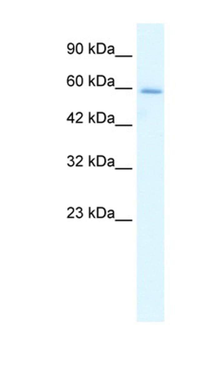 HCLS1 Antibody in Western Blot (WB)