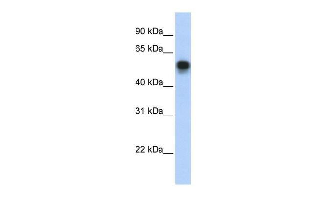 IRF6 Antibody in Western Blot (WB)