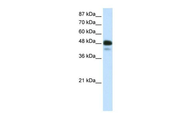 NeuroD2 Antibody in Western Blot (WB)