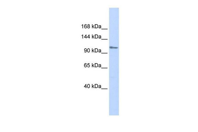 ZFPM1 Antibody in Western Blot (WB)