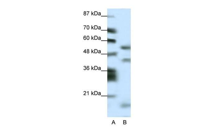 LIM1 Antibody in Western Blot (WB)