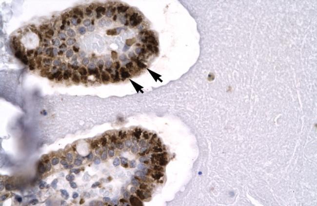 SIRT5 Antibody in Immunohistochemistry (IHC)