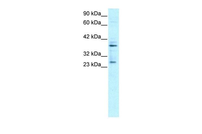 SIRT5 Antibody in Western Blot (WB)