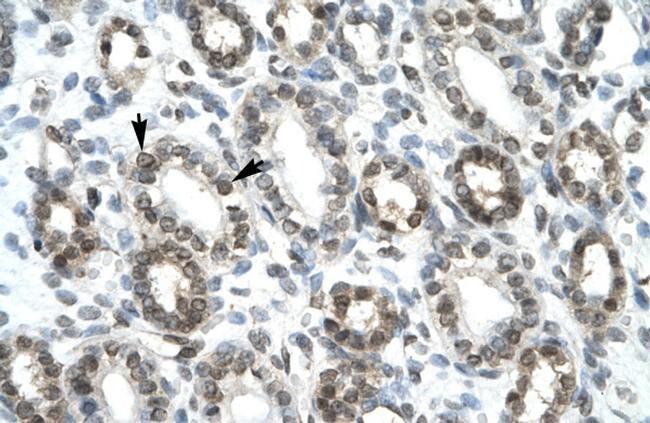 HEY1 Antibody in Immunohistochemistry (Paraffin) (IHC (P))