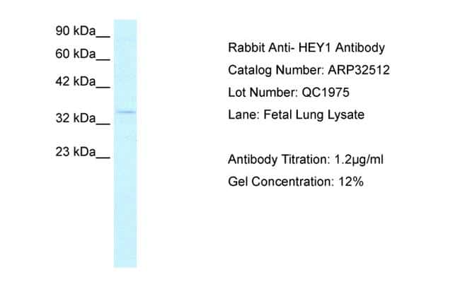 HEY1 Antibody in Western Blot (WB)
