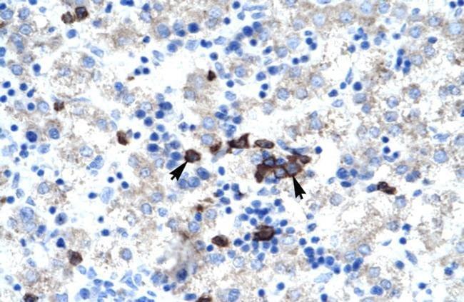 ABT1 Antibody in Immunohistochemistry (IHC)
