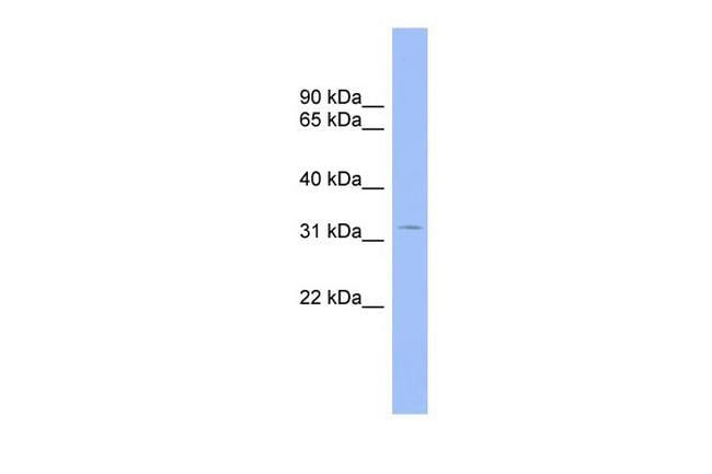 CNOT7 Antibody in Western Blot (WB)