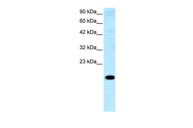 CITED1 Antibody in Western Blot (WB)