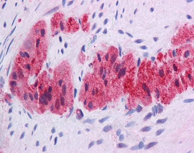 KLF2 Antibody in Immunohistochemistry (IHC)