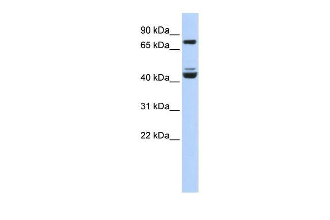 KLF2 Antibody in Western Blot (WB)
