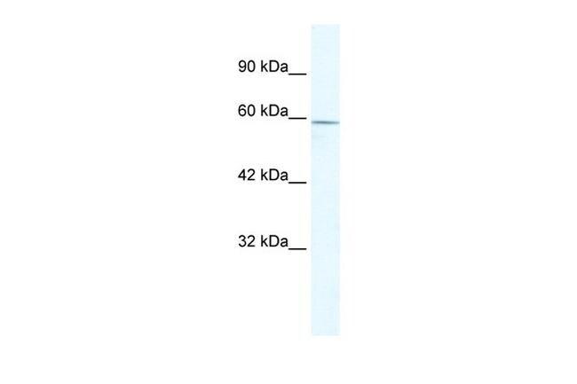 ZBTB7C Antibody in Western Blot (WB)