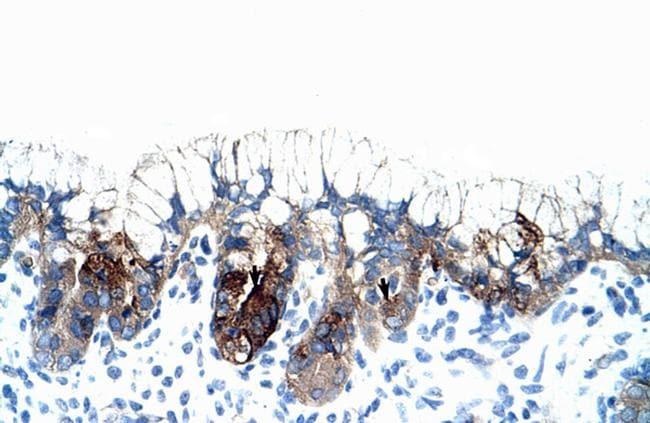 PMF1 Antibody in Immunohistochemistry (IHC)