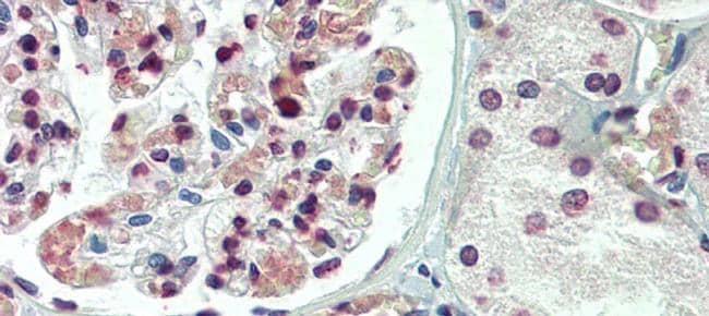 TBX20 Antibody in Immunohistochemistry (IHC)