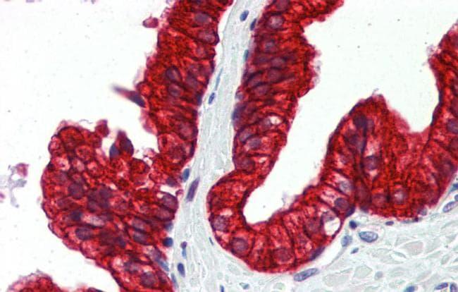 SP3 Antibody in Immunohistochemistry (IHC)
