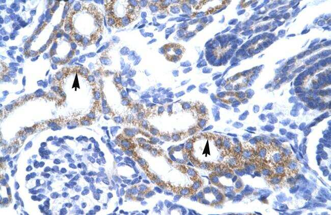 ZFAND6 Antibody in Immunohistochemistry (IHC)