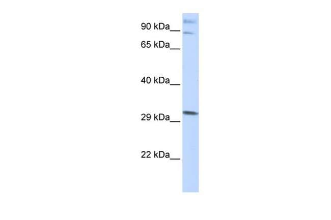 ZNF148 Antibody in Western Blot (WB)