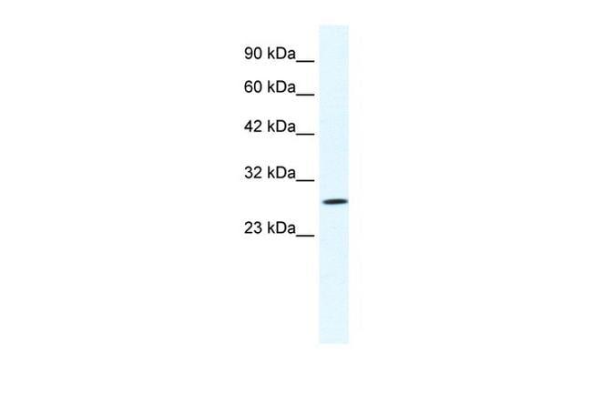 CLIC1 Antibody in Western Blot (WB)