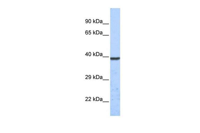 KCNK1 Antibody in Western Blot (WB)