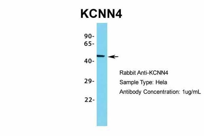 KCNN4 Antibody in Western Blot (WB)