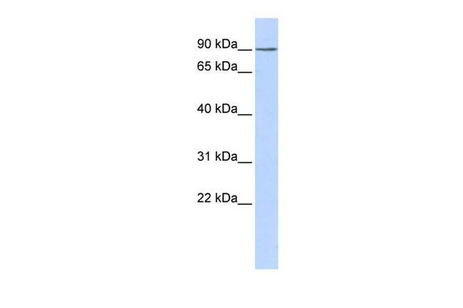 KCTD3 Antibody in Western Blot (WB)