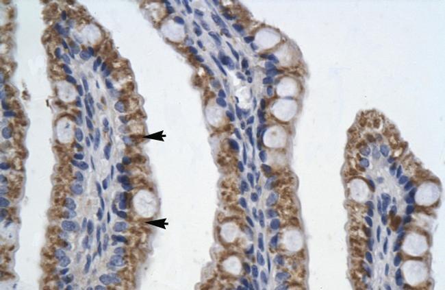 PITX2 Antibody in Immunohistochemistry (IHC)